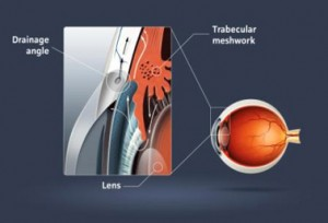 Narrow Angle Glaucoma