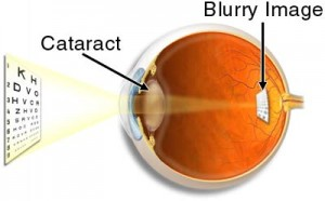 risk-of-cataracts-lens