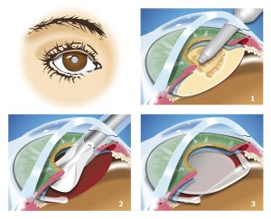 Cataract Surgery Annapolis
