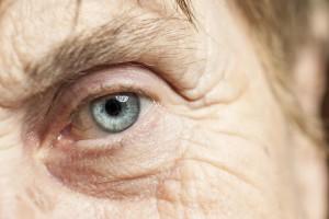 Rheumatoid Arthritis & Vision
