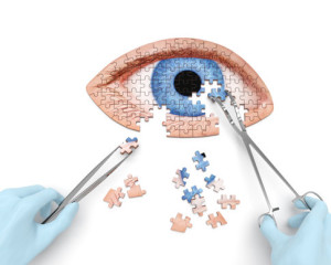Cataract Surgery LenSX Laser